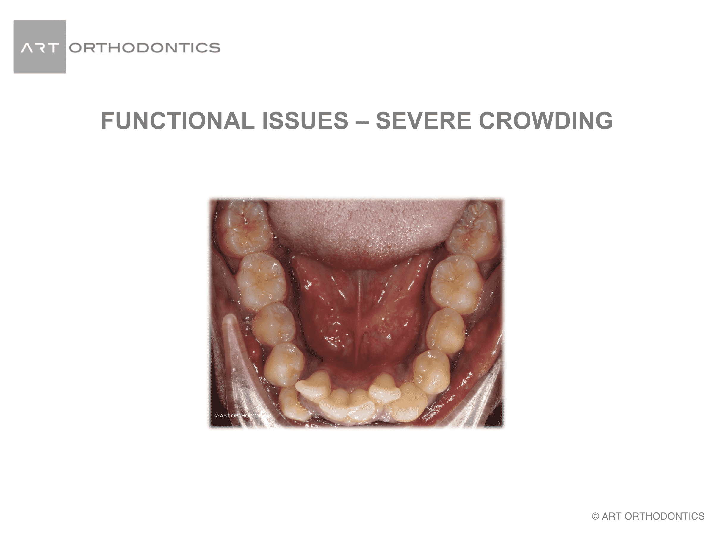 Lower jaw with severe crowding