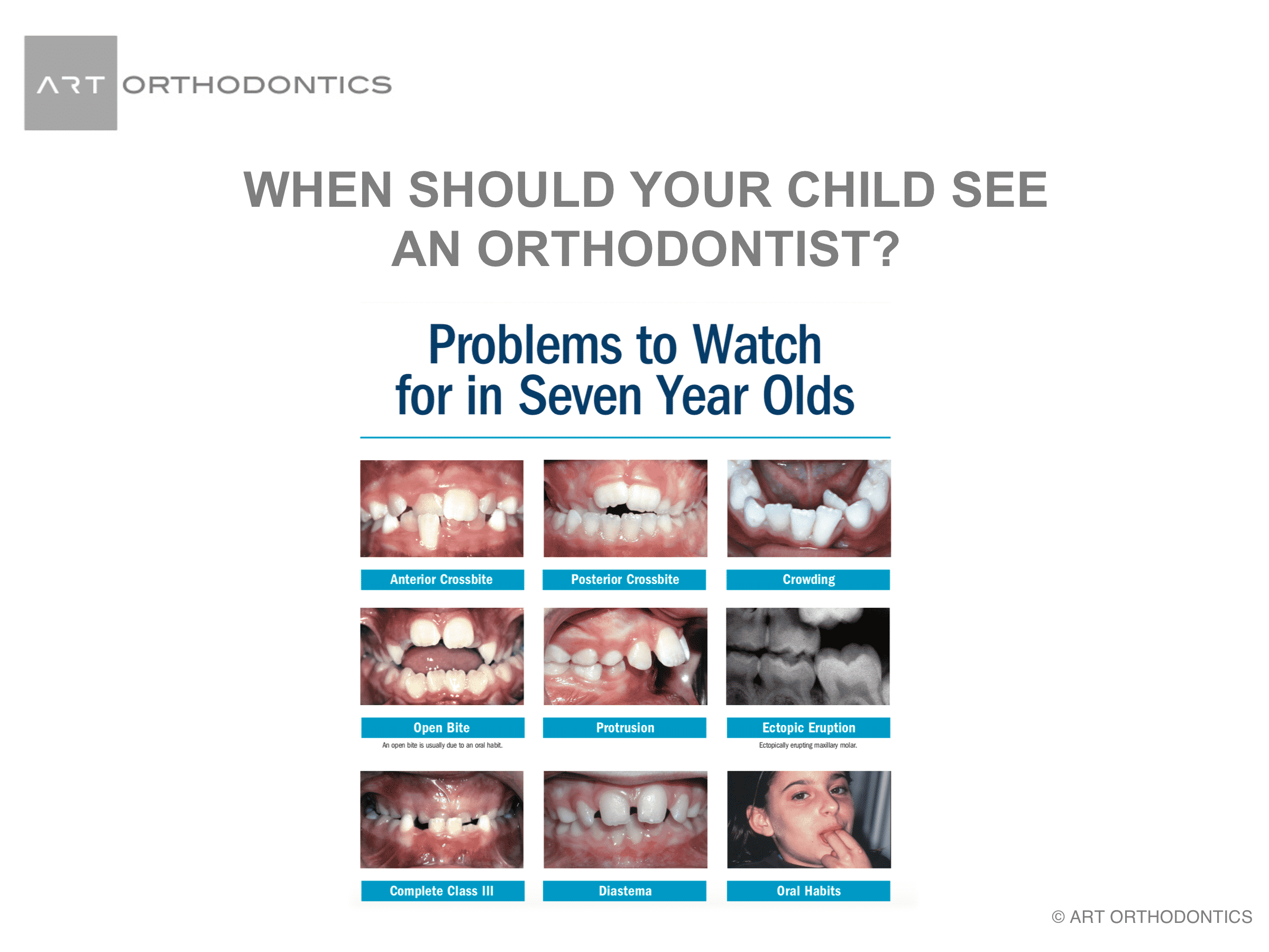 Nine reasons why 7 year olds should see an orthocdontist