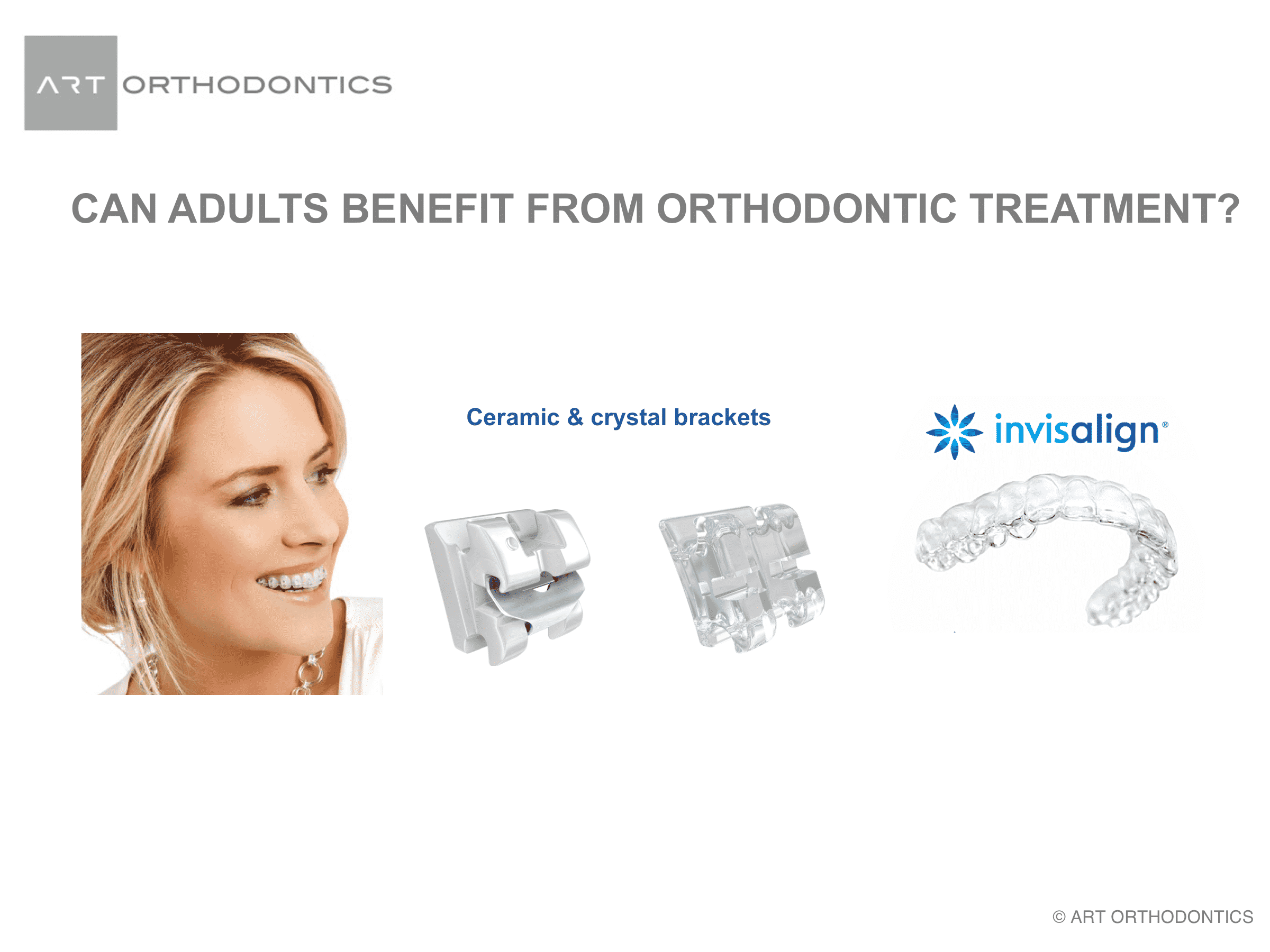 Clear braces and invisalign for adult patients treatment