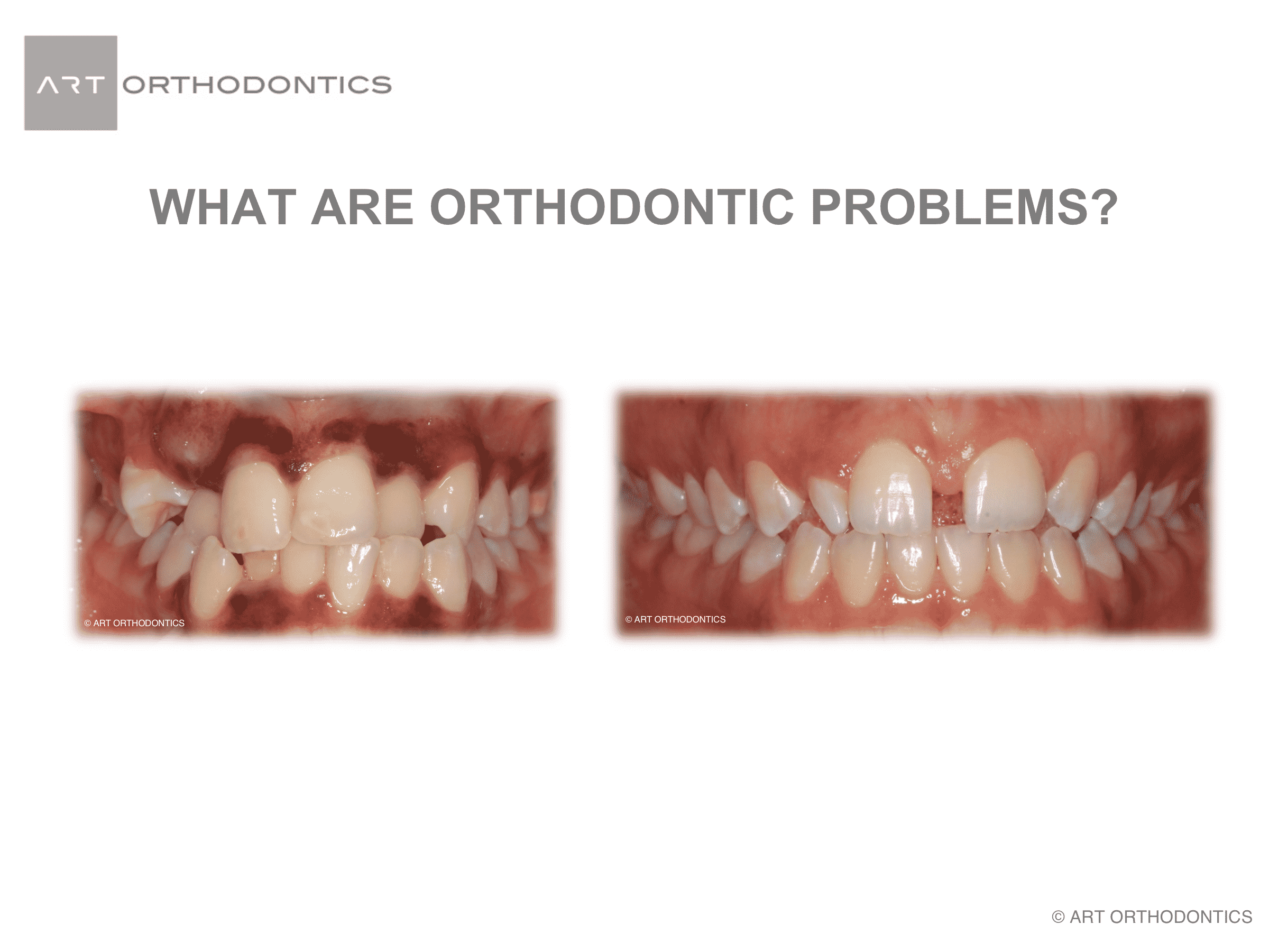 Crowded teeth and teeth with gaps as examples of orthodontic problems