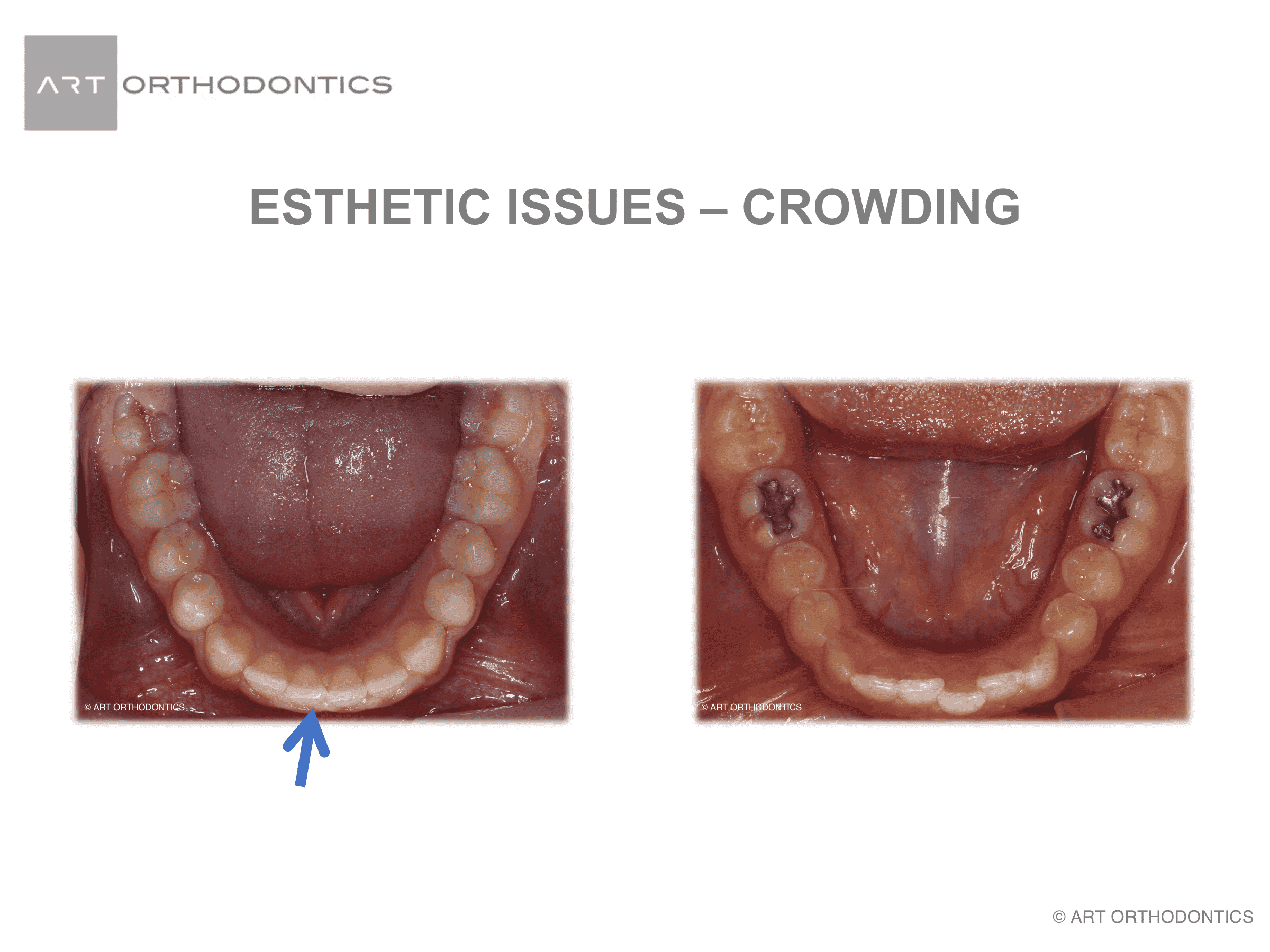 Lower anterior crowding that is mild