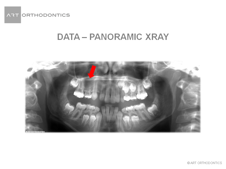 Panoramic X-ray with two missing teeth for ART Orthodontics