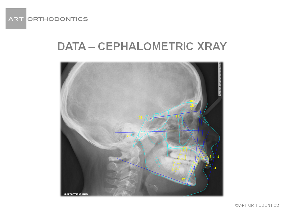 Traced lateral xray (cephalometric) for ART Orthodontics