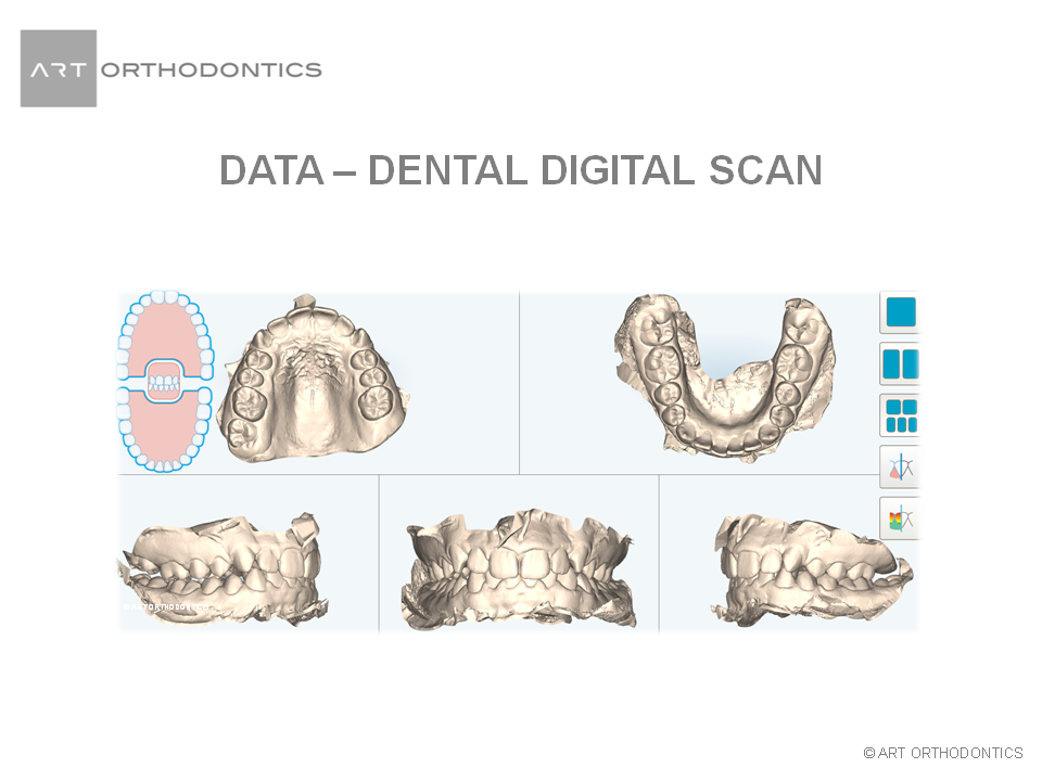 Composite images of models of teeth for ART Orthodontics