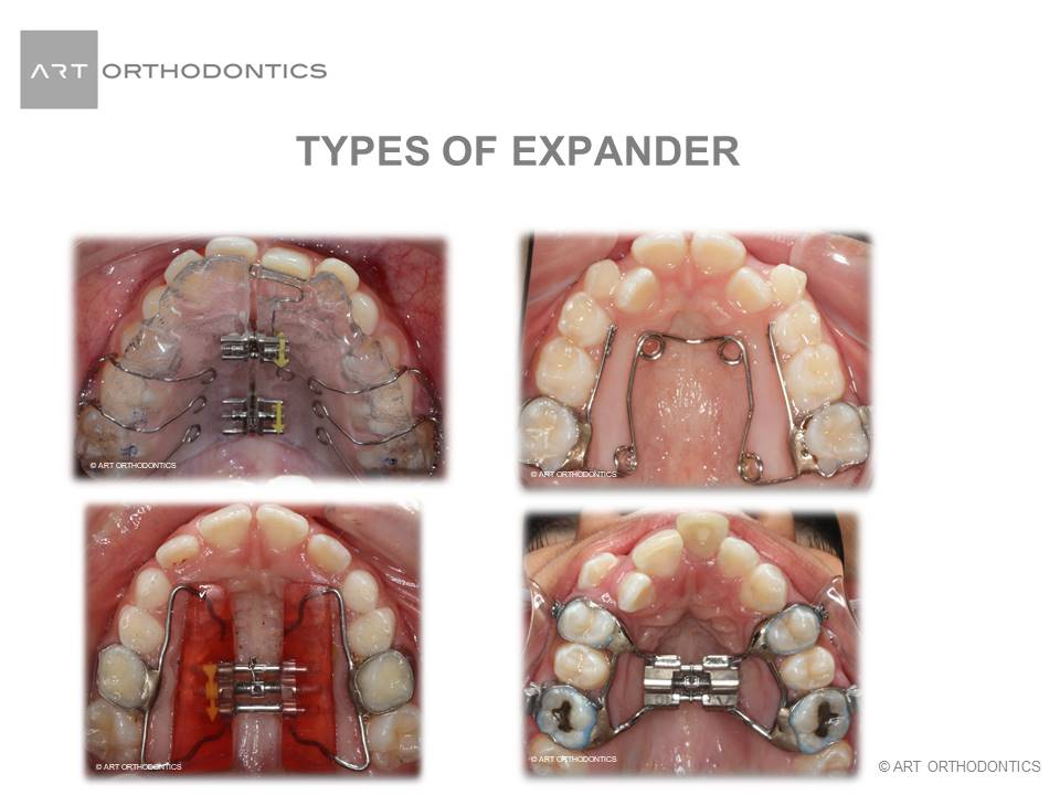 Upper Jaw Expansion Appliances