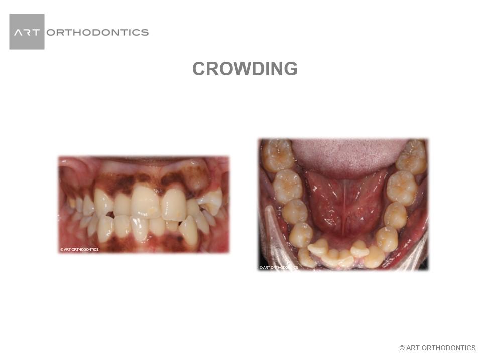 Crowded Teet